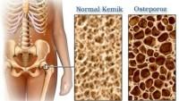 Kemik Erimesi Osteoporoz…